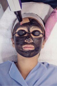 hollywood peel-limpieza facial