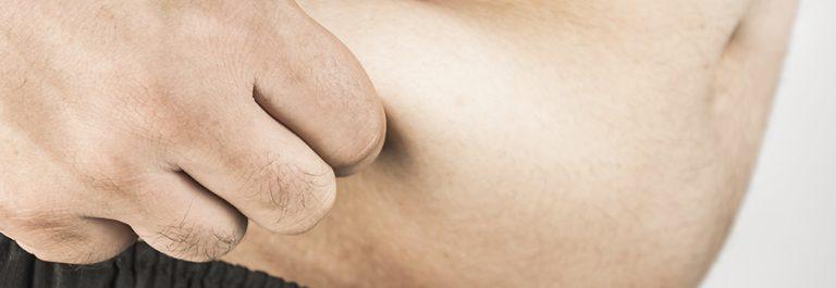 Consultas nutricionales online en México - Obesidad, flacidez, estrías...