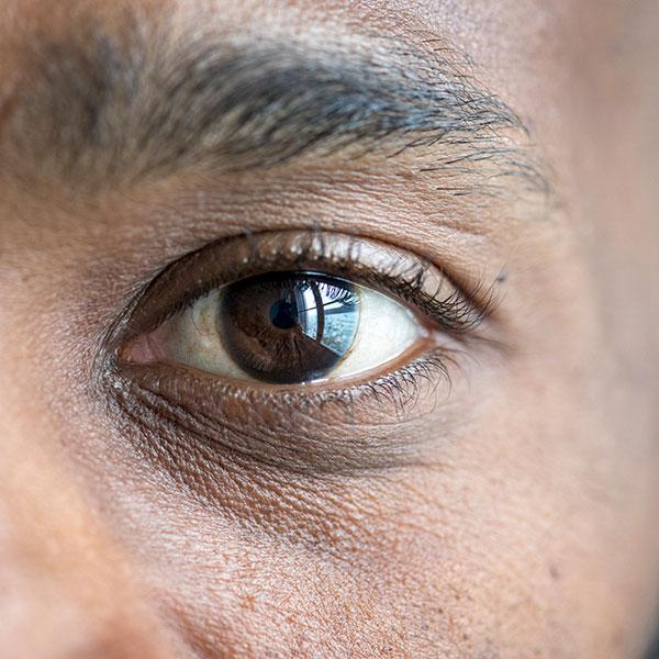 Mejores tratamientos de rejuvenecimiento para hombres en CDMX de 2019
